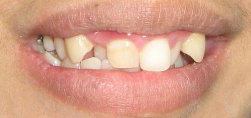 orthodonti1before